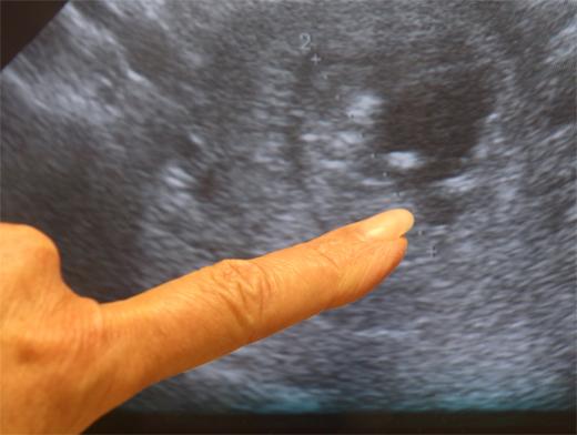 Тест на беременность утром