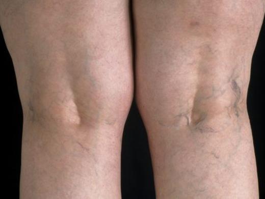 Отечность ног при варикозе что делать